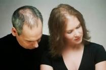 Alopecia androgenetica acomete os dois gêneros mas é mais comum em homens.