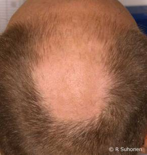 Alopecia androgenetica - um dos padroes mais comuns em homens.