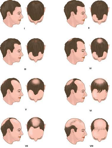 Classificação do estágio evolutivo da alopecia androgenética.