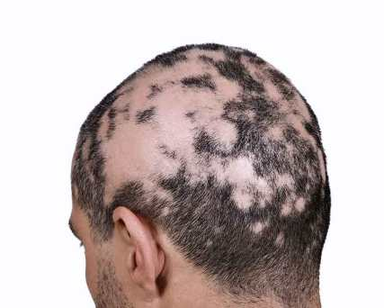 Alopécia areata - diversas lesões que começam a se fundir.