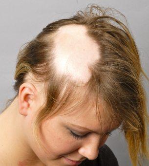 Alopécia areata - lesão única e extensa