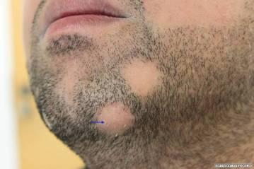 Lesões de alopecia areata na barba.