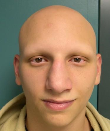 Alopecia areata acometendo todos os tipos de pelo da cabeça.