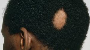 Alopécia areata - lesao única.