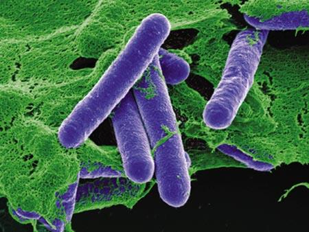 BotulismoClostridium Botulinum Bacteria C: Corbis/Stock Photos