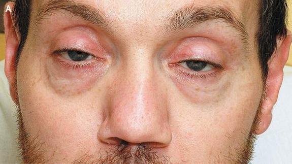 botulismoptose