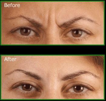 O efeito desejado é paralização temporária, o que evita a formaçao de rugas e sulcos na pele.